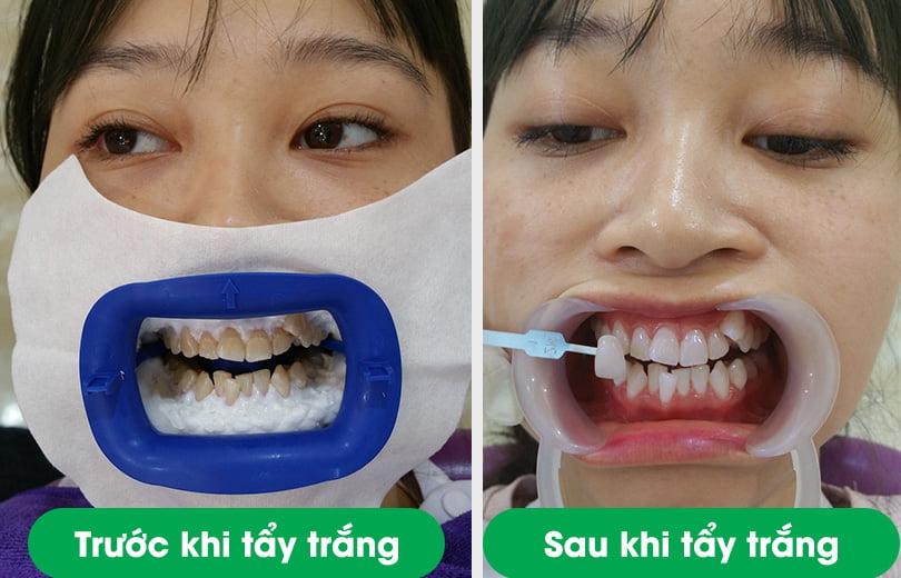 chi phí tẩy trắng răng 2