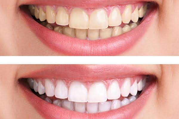 cách làm trắng răng bằng dầu oliu 1