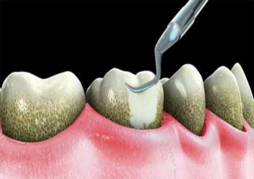 Lấy cao răng hà nội 2