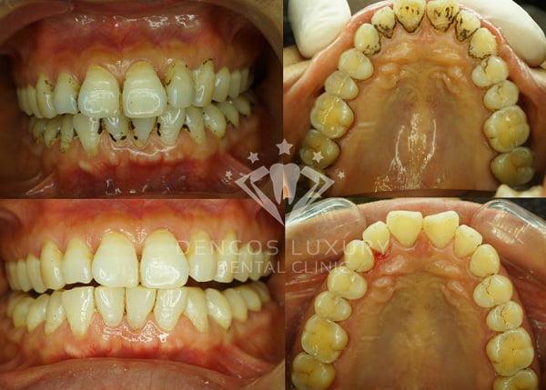 lấy cao răng có đau không 4