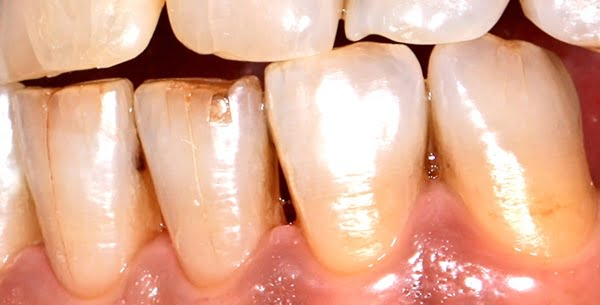 Lấy cao răng có tốt không?