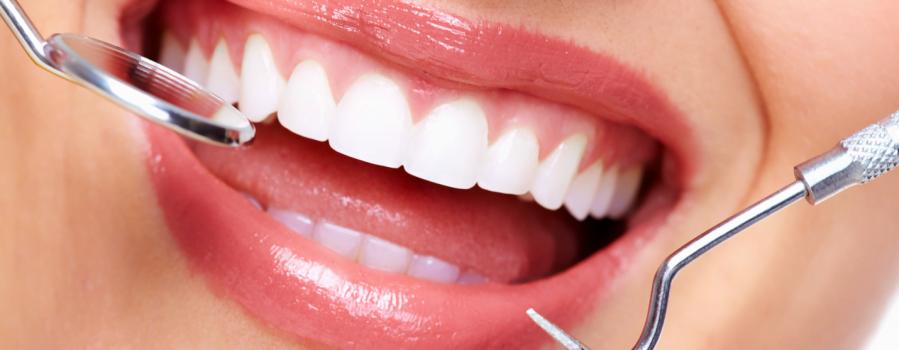 quy trình lấy cao răng 1