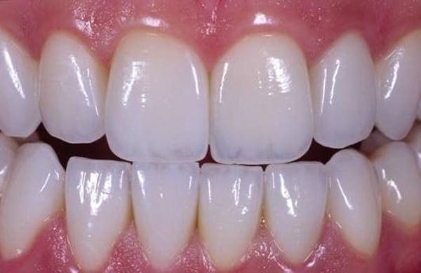 mài răng trong quá trình bọc răng sứ thẩm mỹ