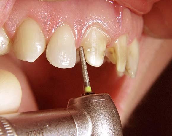 mài răng thẩm mỹ
