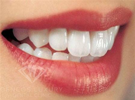 kỹ thuật mài cùi răng