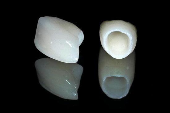 bọc mão răng sứ 1