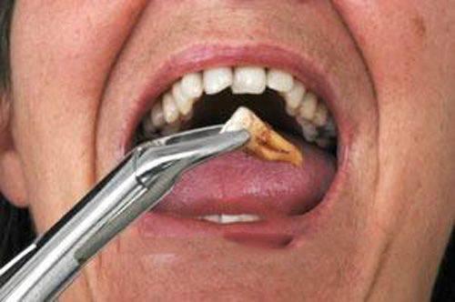 nhổ răng khôn không đau 1