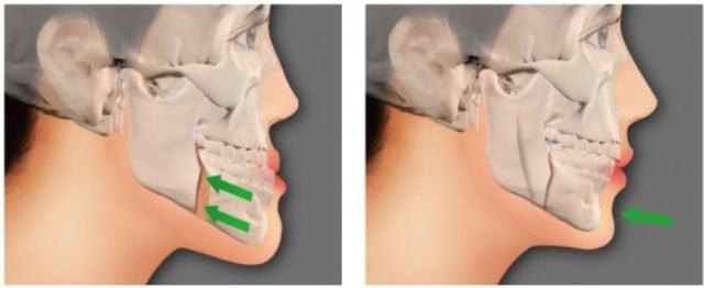 hình ảnh trước và sau khi nong hàm