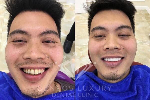 quy trình làm răng sứ thẩm mỹ 5