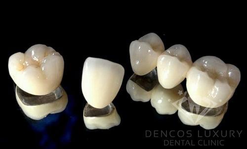 bảng giá chụp răng sứ 1