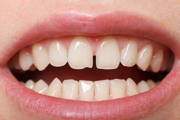 răng sứ veneer có tốt không 1