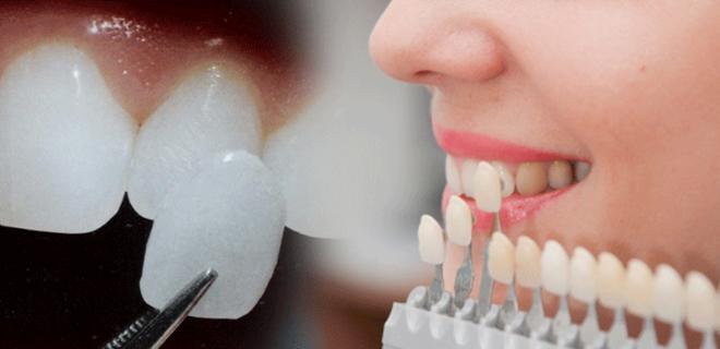 răng sứ veneer có tốt không 3