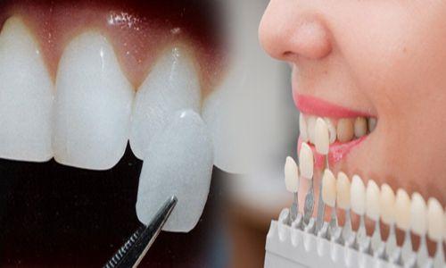 răng thỏ tướng số