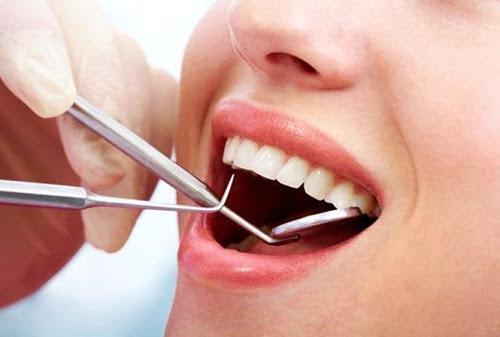 quy trình lấy cao răng 2