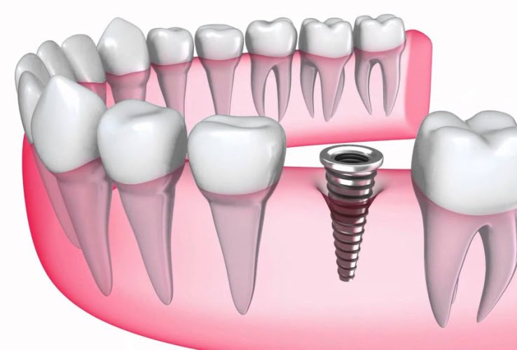 ky-thuat-cay-ghep-implant