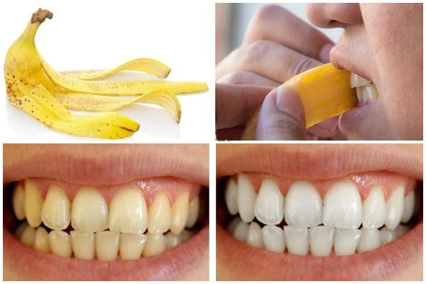 tự lấy cao răng bằng vỏ chuối 2