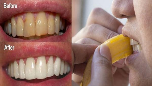 cách lấy cao răng lâu năm