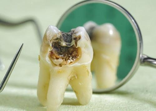 có nên nhổ răng khôn không 2