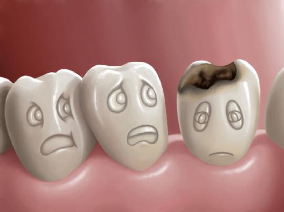 hình ảnh sâu răng