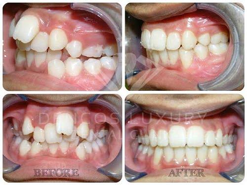 kết quả niềng răng thẩm mỹ
