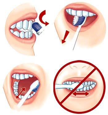 nguyên nhân sâu răng 3