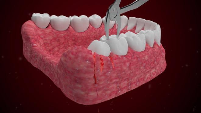 nhổ răng khôn bao nhiêu tiền 1