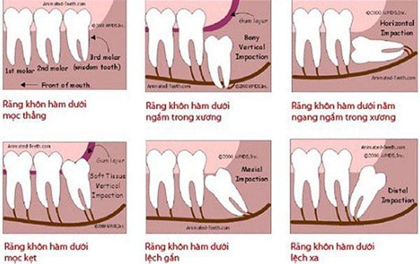 nhổ răng khôn hàm dưới 2
