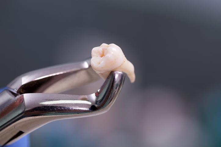 Nhổ răng khôn ở đâu 2