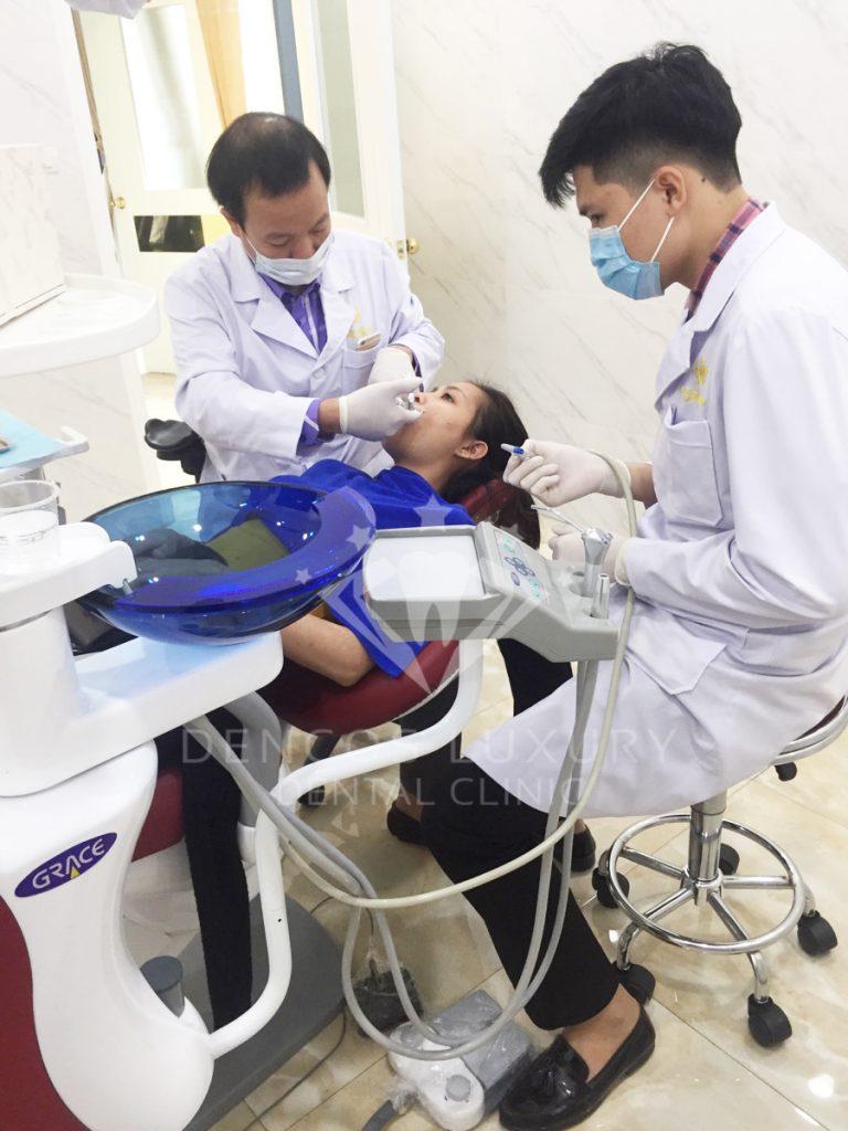 Nhổ răng cửa 4