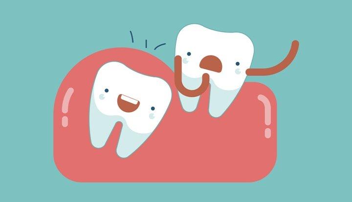 Nhổ răng khôn ở đâu 1