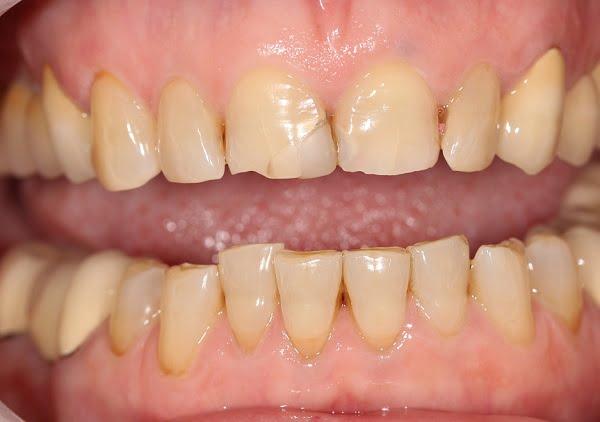 Thiểu sản men răng