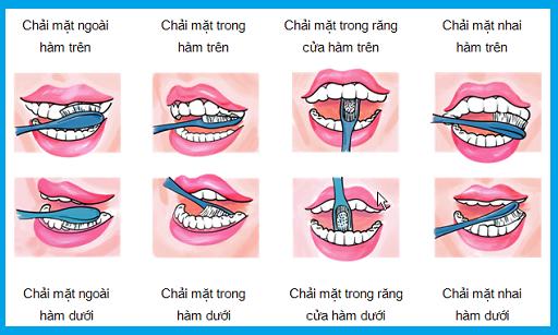 vệ sinh răng miệng chăm sóc răng sứ tốt hơn