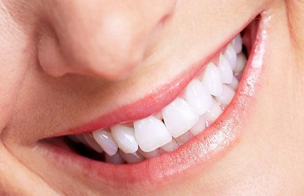 có nên bọc răng sứ sớm không