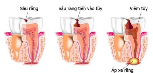 boc-rang-su-co-lay-tuy-khong-3