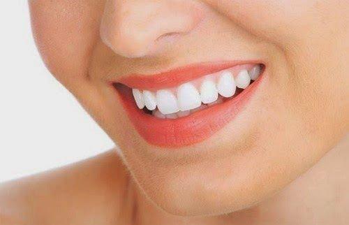 Kết quả hình ảnh cho các bệnh nhân cần phải có một chế độ răng sứ