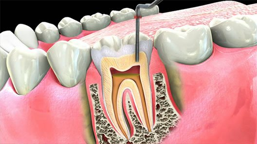 điều trị viêm tủy răng 6