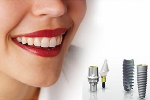 trong-rang-implant-mat-bao-lau-3