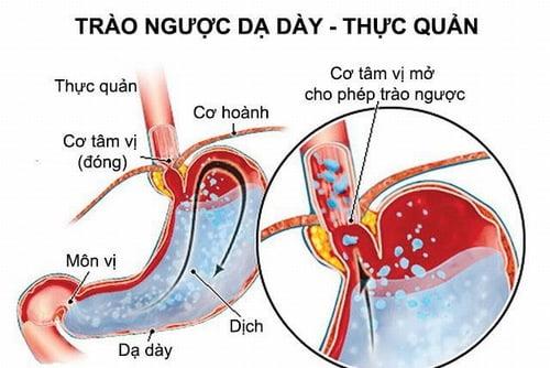 Đắng miệng buồn nôn - Nguyên nhân & cách chữa trị tại nhà hiệu quả 2