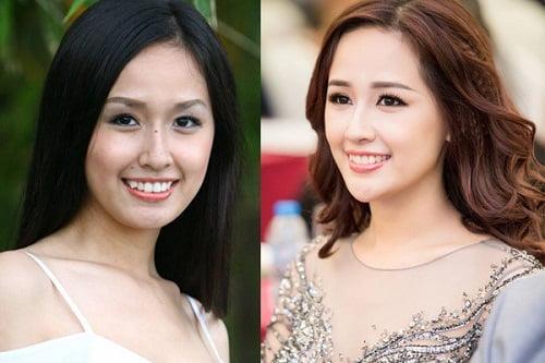 <center>Hoa hậu mai phương thúy đẹp hiền hậu sau khi niềng răng<center>