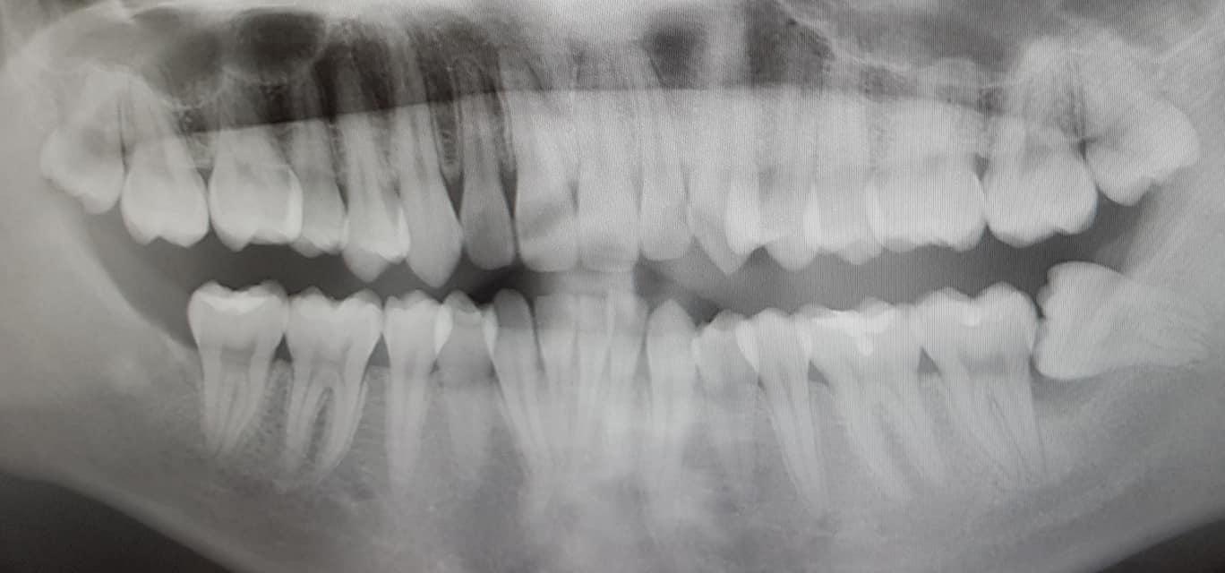mọc răng khôn bị lợi trùm 1