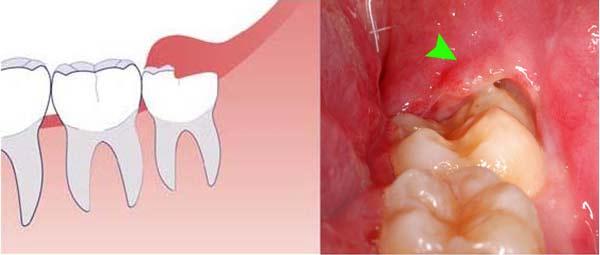 mọc răng khôn hàm dưới