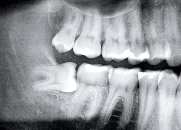 mọc răng khôn hàm dưới 2