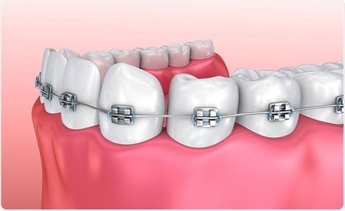 Niềng răng hàm dưới giá bao nhiêu?