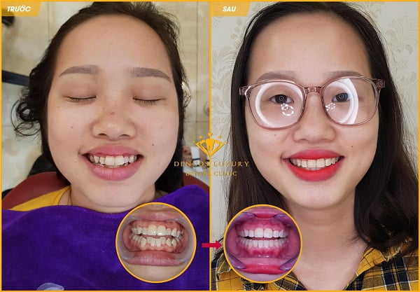 niềng răng invisalign có tốt không