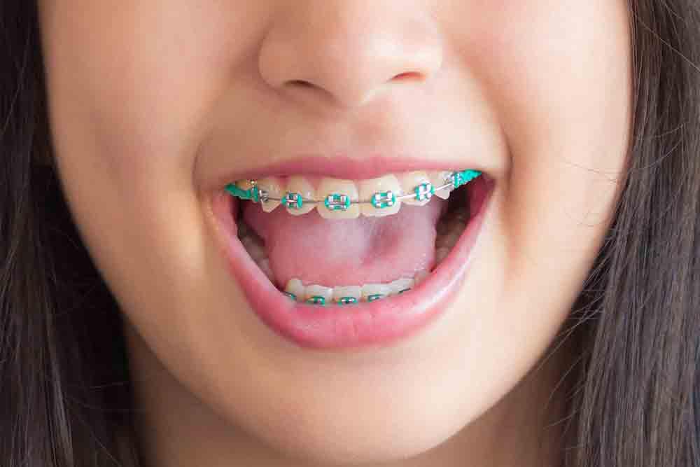 niềng răng đẹp cỡ nào 8