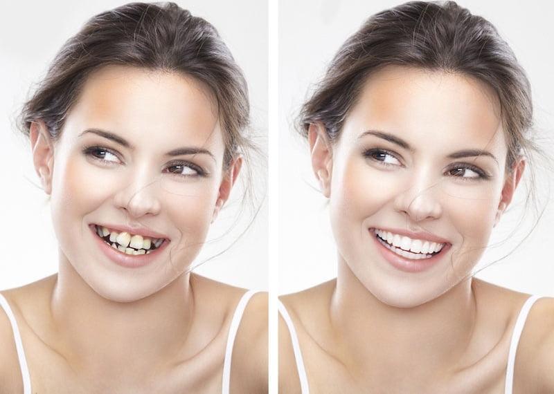 niềng răng đẹp cỡ nào 1