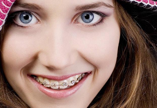 niềng răng kim loại