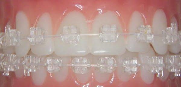 niềng răng mắc cài sứ giá bao nhiêu 2