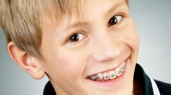 niềng răng mất bao lâu 1