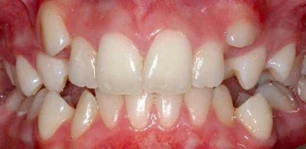 niềng răng mất bao lâu 2